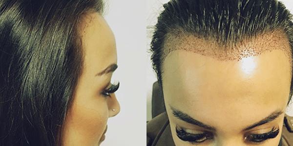 female hairtransplant