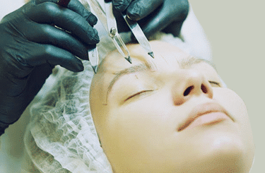 eyebrow transplant fron