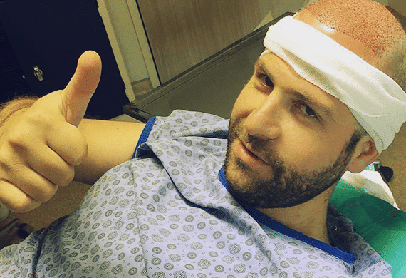 All Inclusive hair transplant